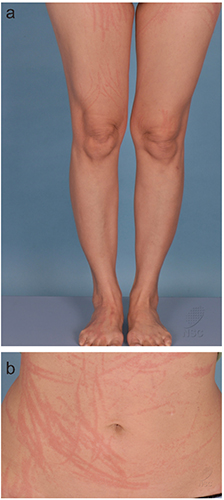 Flagellate dermatitis following consumption of shiitake