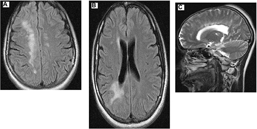 The chronic encephalopathy of Parry Romberg Syndrome and en